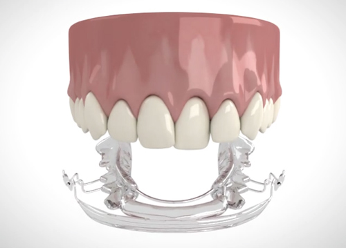 orthodontics teeth and aligner